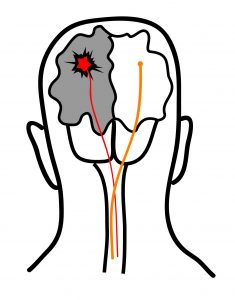 Wird der Schlaganfall wie abgebildet in der linken Hirnhälfte ausgelöst, treten seine Symptome durch Überkreuzung der Nerven in der rechten Körperhälfte auf.